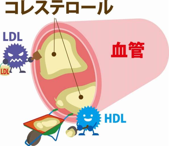 脂質異常症の検査と基準